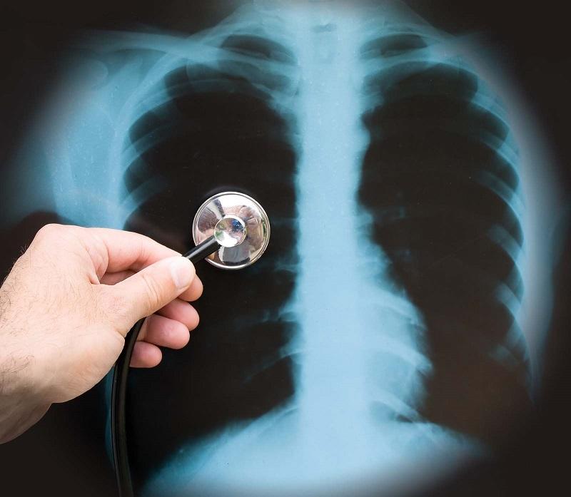 plaučių rentgeno nuotrauka esant hipertenzijai)