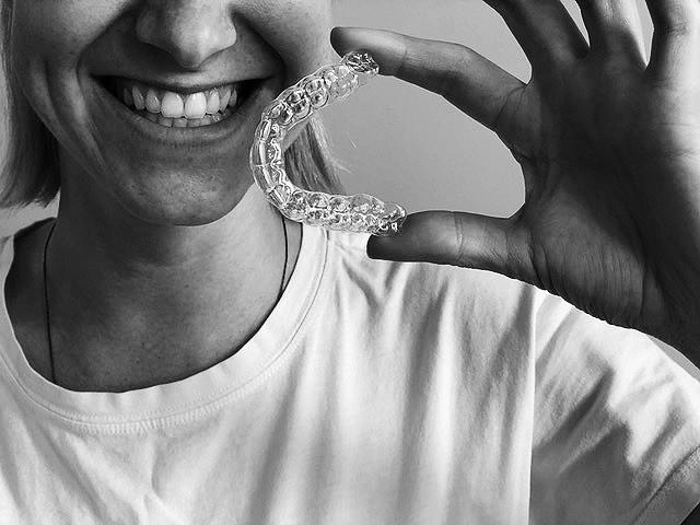 Dantų tiesinimas be breketų? Tai jau įmanoma
