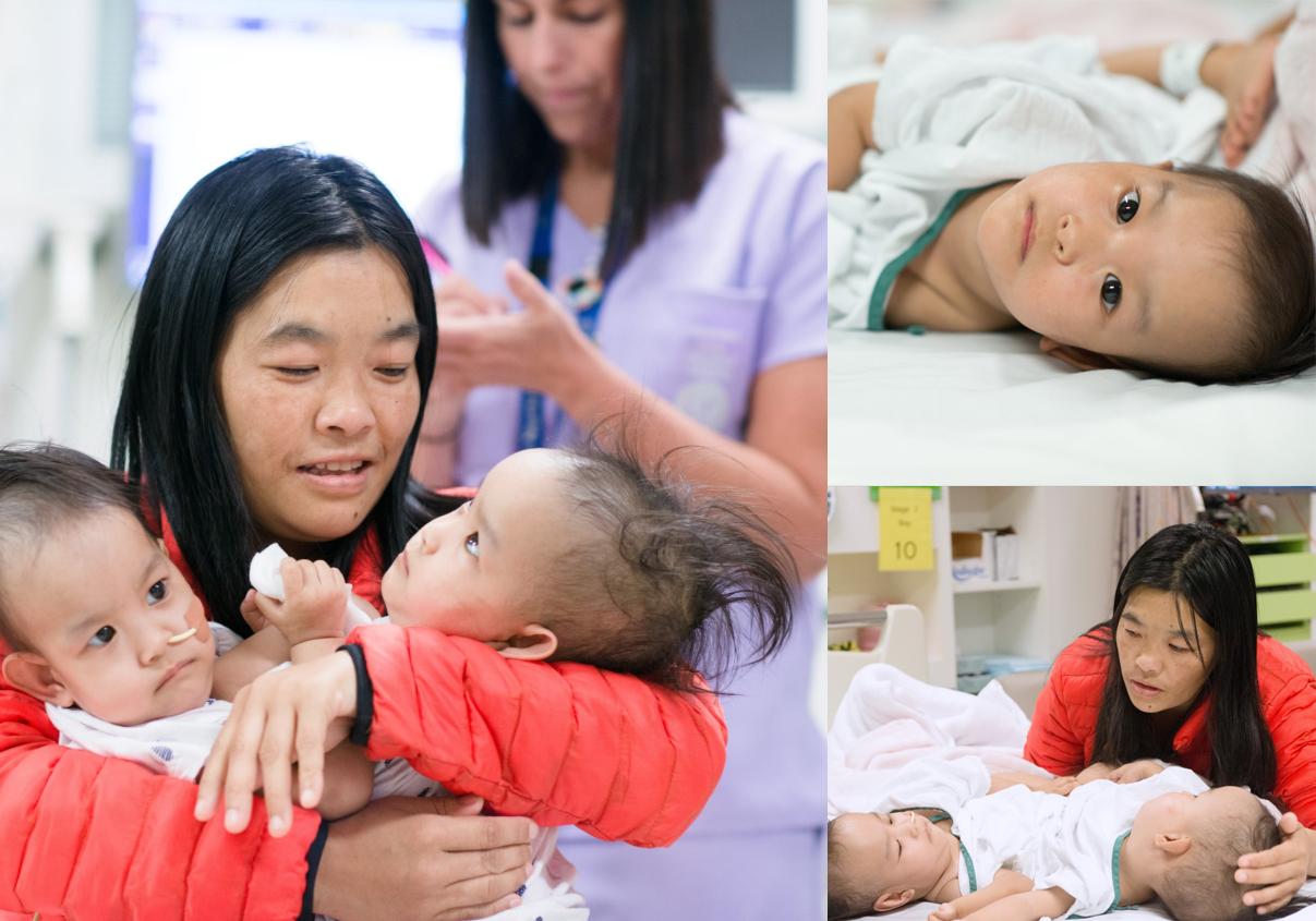 Australijoje atlikta Siamo dvynių atskyrimo operacija