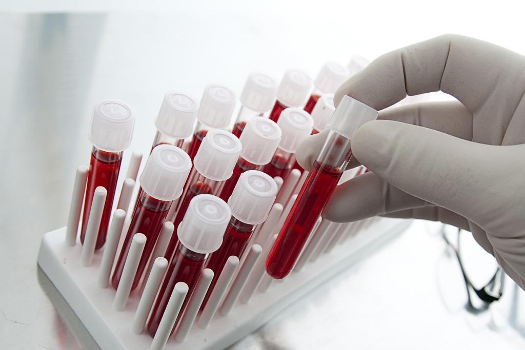 Kraujo tyrimai be adatos dūrio - jau netrukus