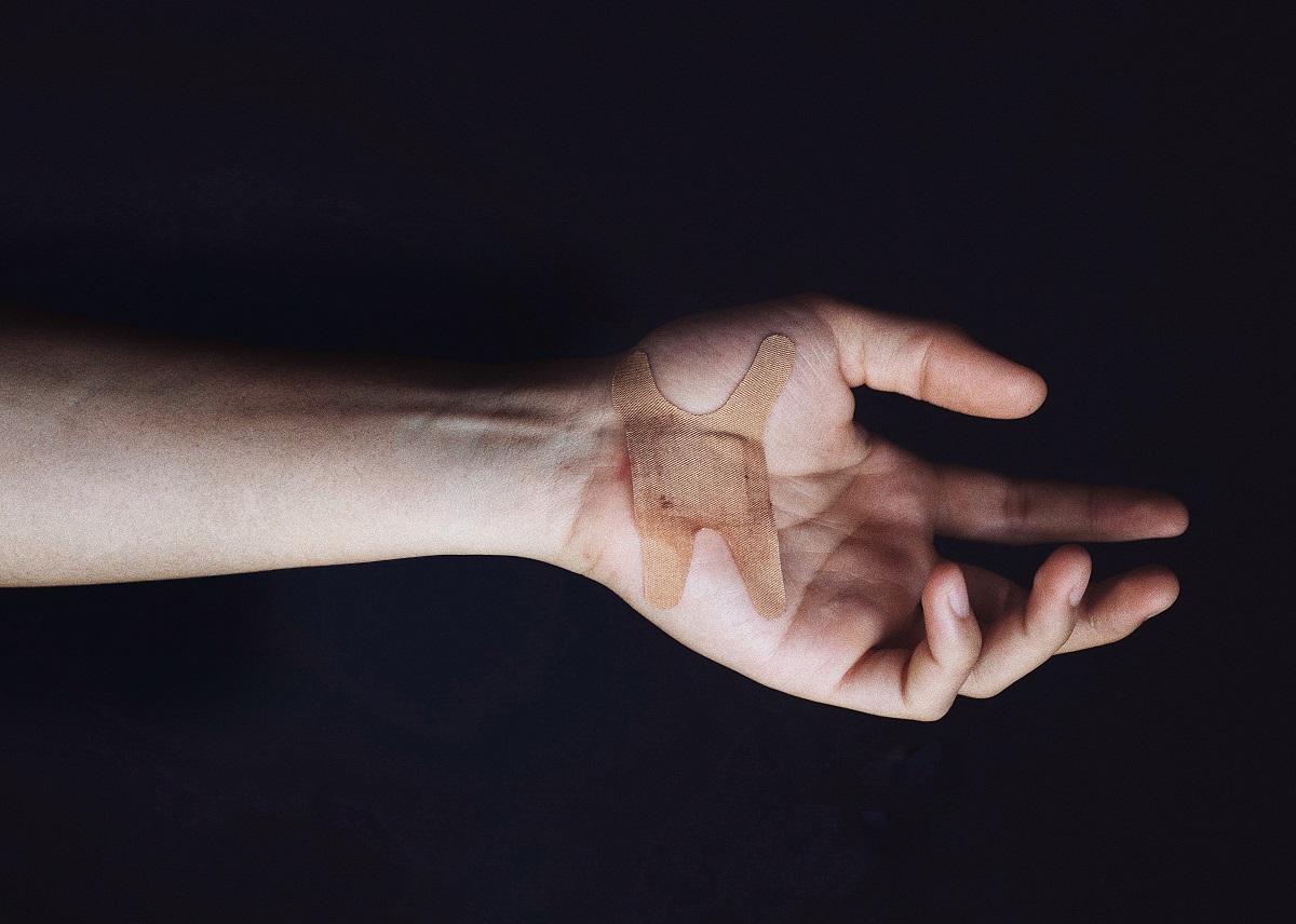 Ką tepti ant žaizdų: netinkamai pasirenkamos dezinfekcinės priemonės kelia pavojų sveikatai