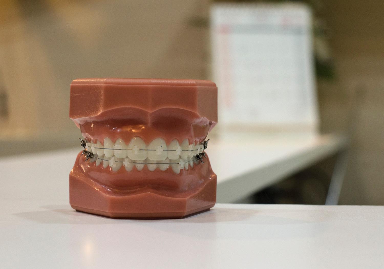 Rekordas: ištraukto ilgiausio žmogaus danties ilgis – 37,2 mm
