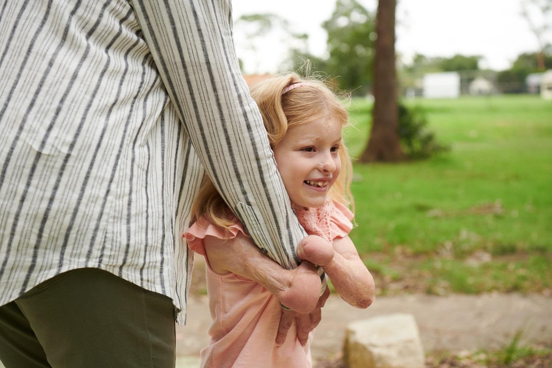 Meningokoką išgyvenusių vaikų istorijos primena, kaip svarbu nepraleisti skiepo