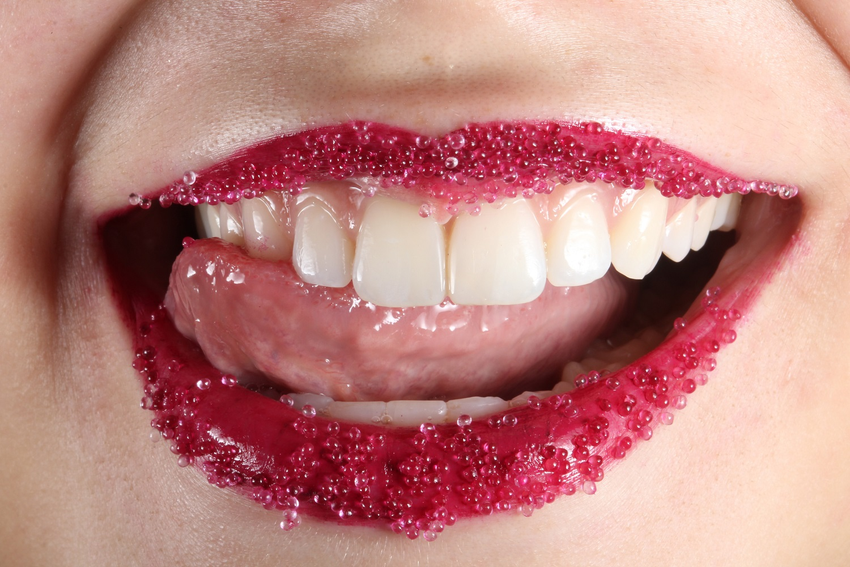 Atskleidė, kokios didžiausios su dantų implantais susijusios baimės