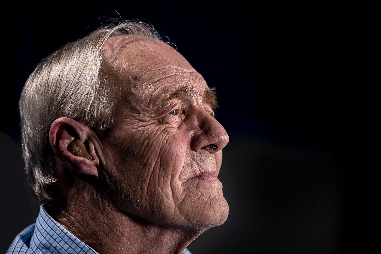 Problema, kurios neišvengia nei vienas penkiasdešimtmetis: tūrį praradęs veidas atrodo pavargęs ir liūdnas