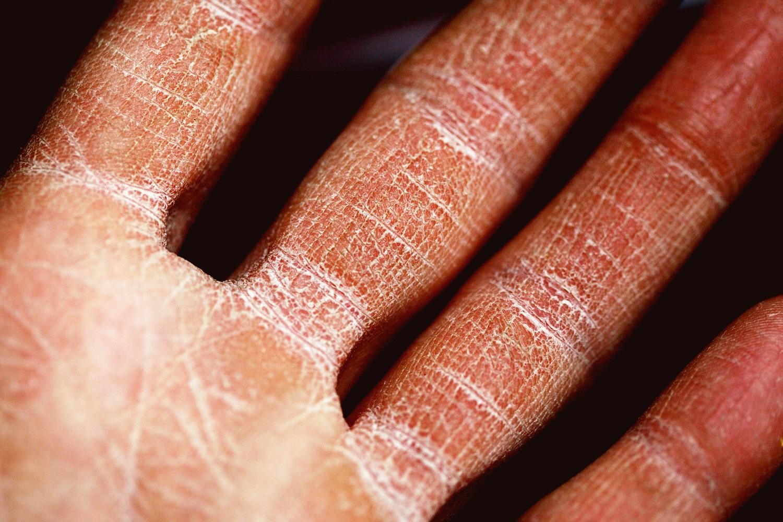 Sausa ir sudirgusi oda? 5 patarimai, kaip išspręsti šią problemą