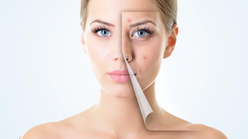 Aknė – ne vien paauglių problema, kenčia vis daugiau vyresnių moterų ir vyrų