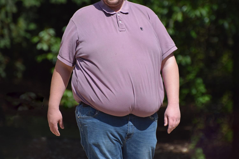 Gydytoja dietologė griauna nusistovėjusį mitą: nutukimą lemia ne tik du visiems gerai žinomi veiksniai